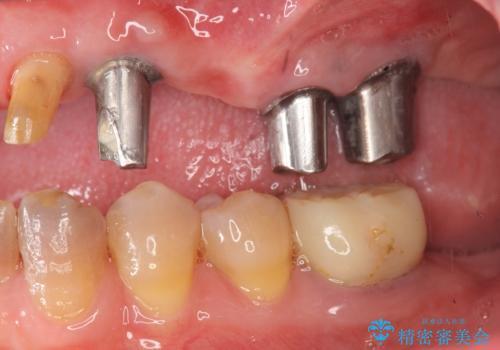 [入れ歯にしたくない] 臼歯部インプラント補綴の治療中