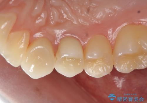 虫歯で歯が折れた セラミック審美修復の治療後