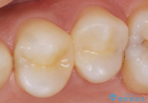 X線撮影によりわかる、内在する虫歯治療の治療後