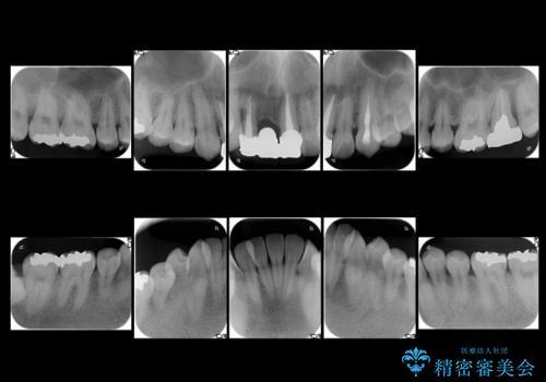前歯ブリッジのやりかえ 下の歯のがたつき 銀歯を全てセラミックにの治療前