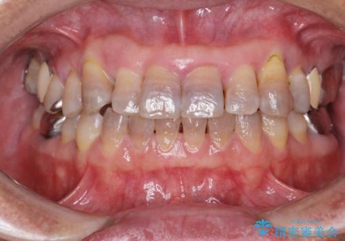 歯周外科治療の症例 治療前