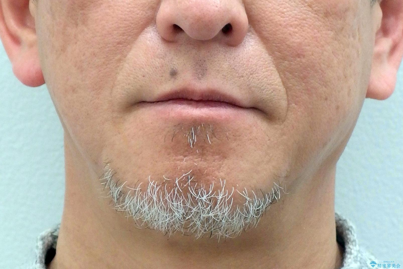 50代男性 受け口 他院で5年以上かかると治療を断られたの治療前(顔貌)