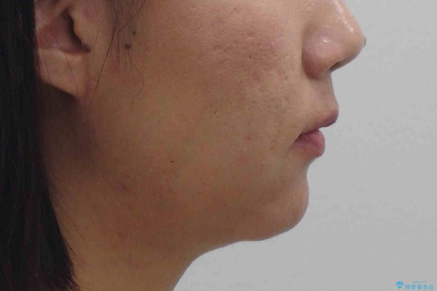 埋まっている奥歯を引っ張り出す インビザライン矯正の治療前(顔貌)