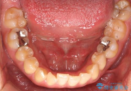 埋まっている奥歯を引っ張り出す インビザライン矯正の治療前