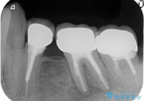 オールセラミッククラウン 痛くて咬めない奥歯の治療の治療前