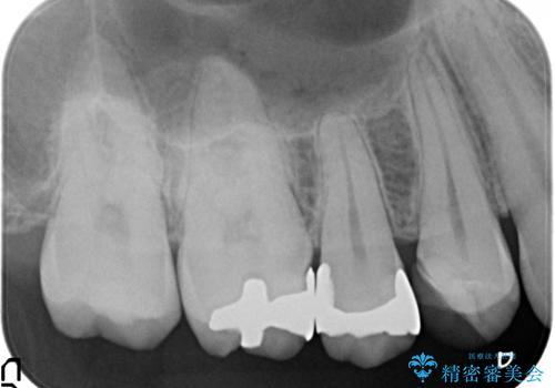 以前治療した歯が痛む 銀歯をセラミックにの治療前