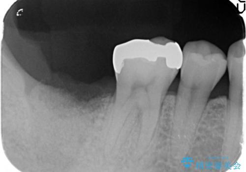抜歯時歯槽堤保存術を用いた骨造成・インプラント治療の治療前