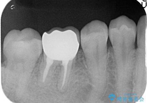 オールセラミッククラウン 鈍い痛みが続く奥歯の治療の治療後