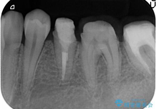 歯ぐきからの出血 歯周外科による改善の治療中
