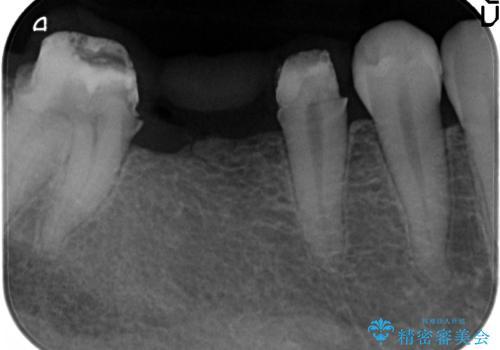 インプラントを用いた臼歯部欠損補綴の治療中