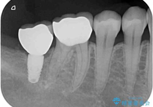 奥歯がしみる セラミックインレーによるむし歯治療の治療後