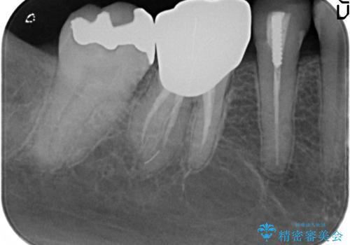 PGA(ゴールド)インレー しみる銀歯の虫歯治療の治療前