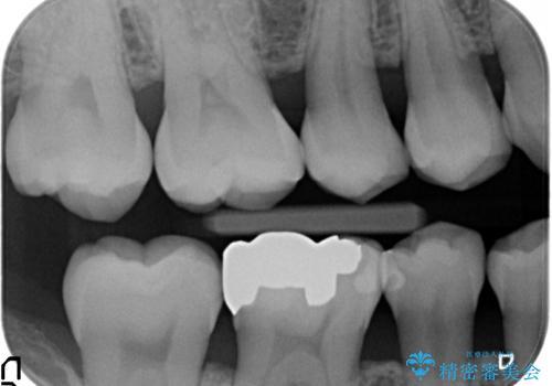 オールセラミッククラウン 目立つ銀歯を白い歯への治療前