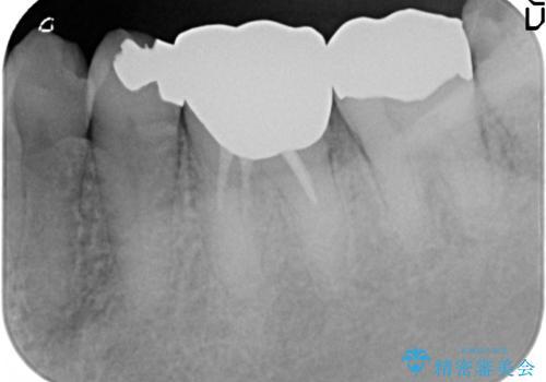 オールセラミッククラウン 他院にて抜歯と言われた歯の治療の治療前