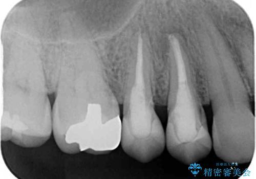 治療途中で放置していた歯 オールセラミッククラウンによる補綴治療の治療後