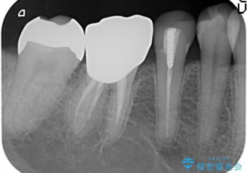 PGA(ゴールド)インレー しみる銀歯の虫歯治療の治療後