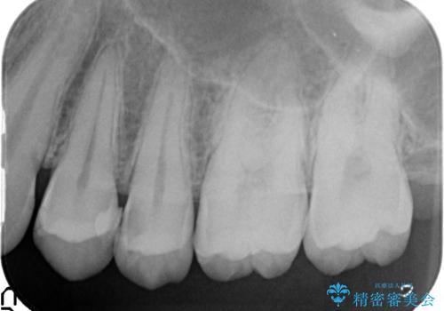 X線撮影によりわかる、内在する虫歯治療の治療前