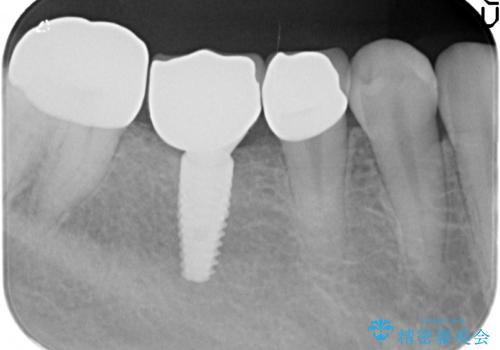 インプラントを用いた臼歯部欠損補綴の治療後