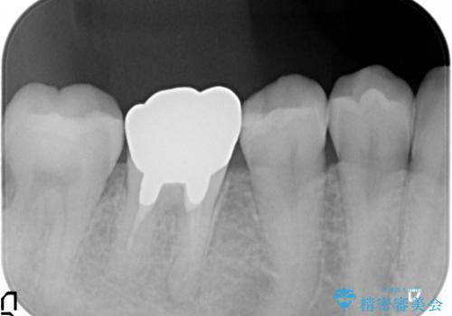 オールセラミッククラウン 鈍い痛みが続く奥歯の治療の治療前