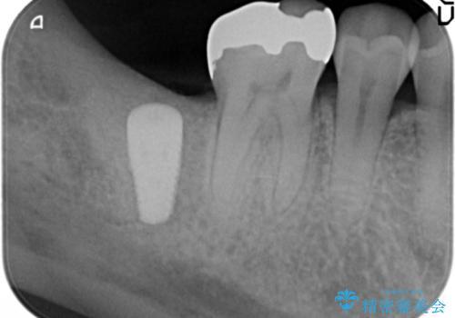 抜歯時歯槽堤保存術を用いた骨造成・インプラント治療の治療中