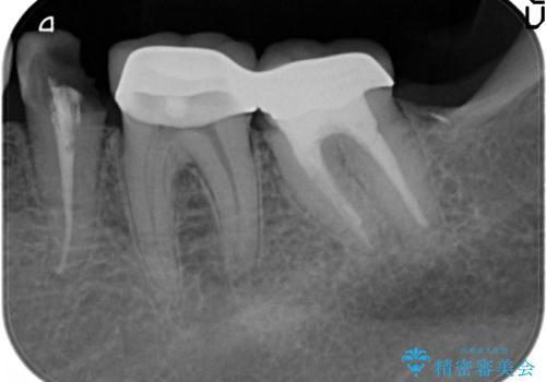 歯ぐきからの出血 歯周外科による改善の治療前