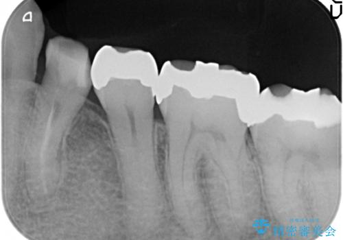 オールセラミッククラウン 奥歯の銀歯を白くの治療前