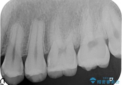 虫歯を治したい、セラミックによる治療の治療前