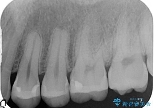 虫歯を治したい、セラミックによる治療の治療後