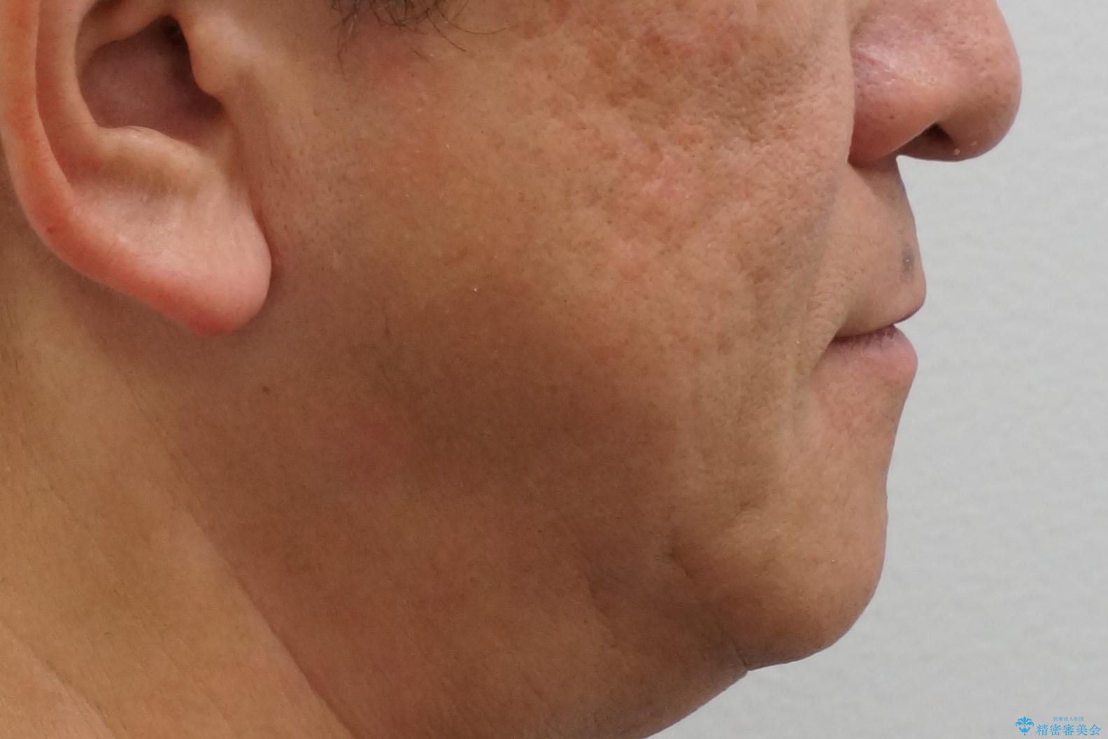 50代男性 受け口 他院で5年以上かかると治療を断られたの治療後(顔貌)
