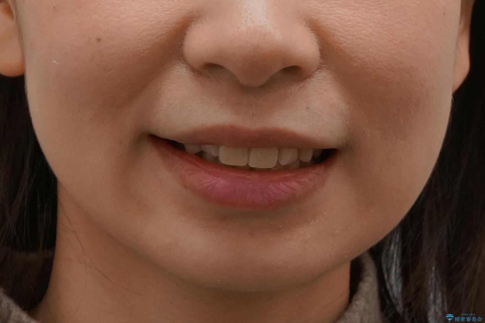 歯並びのがたつきを直したい ワイヤーは嫌 抜きたくないの治療後(顔貌)