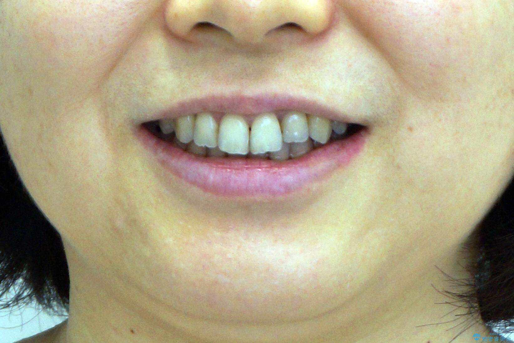 前歯のガタガタ 治療期間がかかっても良いので非抜歯でマウスピースでの治療後(顔貌)