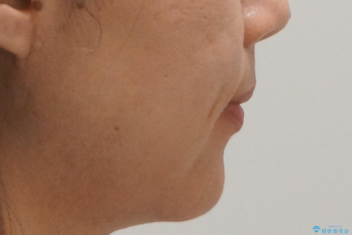 埋まっている奥歯を引っ張り出す インビザライン矯正の治療後(顔貌)