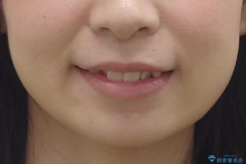 歯並びのがたつきを直したい ワイヤーは嫌 抜きたくないの治療前(顔貌)