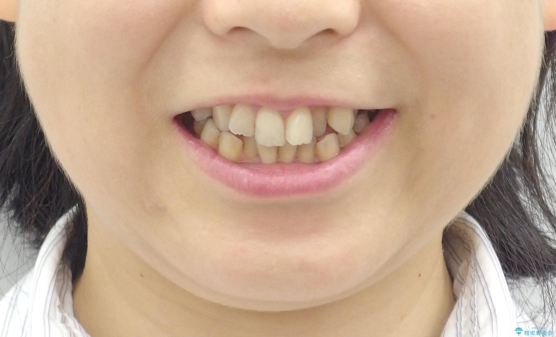 前歯のガタガタ 治療期間がかかっても良いので非抜歯でマウスピースでの治療前(顔貌)