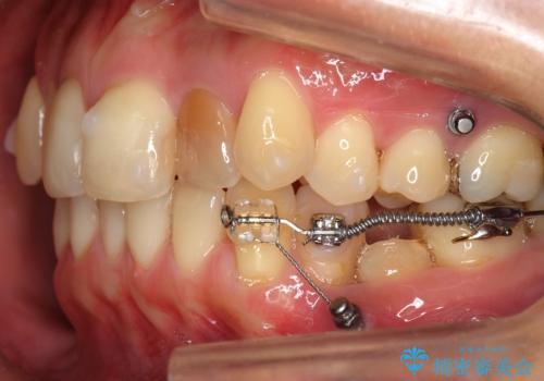 埋まっている奥歯を引っ張り出す インビザライン矯正の治療中