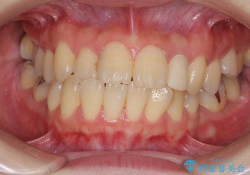 話しにくい歯並びの改善 抜歯矯正治療と前歯の審美治療の症例 治療前