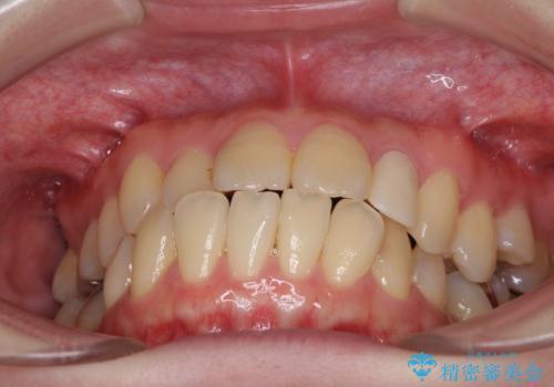話しにくい歯並びの改善 抜歯矯正治療と前歯の審美治療の治療前