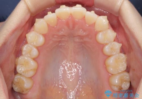 前歯のクロスバイトをインビザライン矯正で改善の治療中