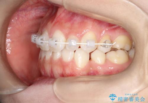 前歯の後戻りを部分矯正で整った歯並びへの治療中