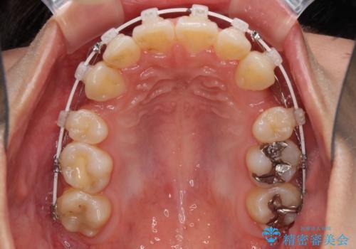 どんなに磨いても汚れが溜まる 抜歯矯正で清潔な口元にの治療中