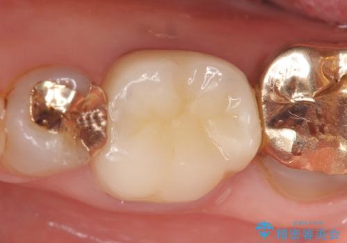 オールセラミッククラウン 他院にて抜歯と言われた歯の治療の治療後