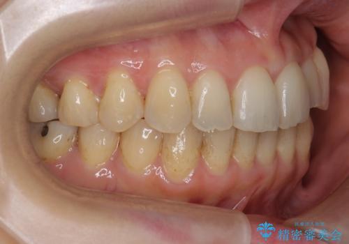 前歯のガタガタ 治療期間がかかっても良いので非抜歯でマウスピースでの治療後