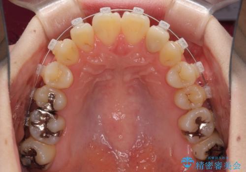 話しにくい歯並びの改善 抜歯矯正治療と前歯の審美治療の治療中