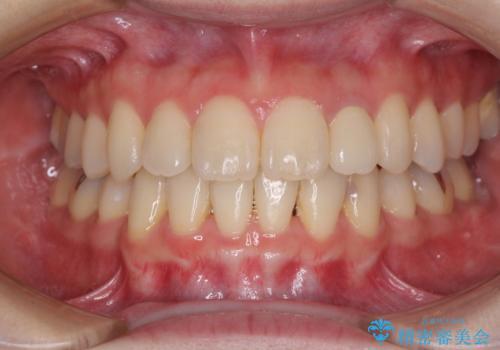 話しにくい歯並びの改善 抜歯矯正治療と前歯の審美治療の症例 治療後