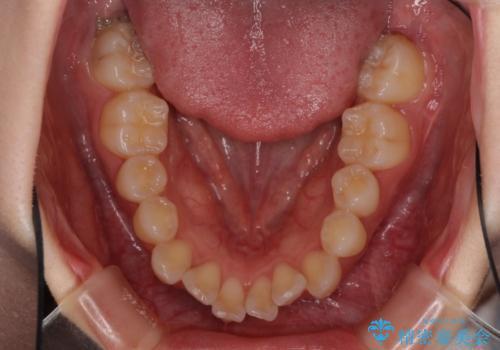 前歯のデコボコと突出感 インビザラインで改善の治療前