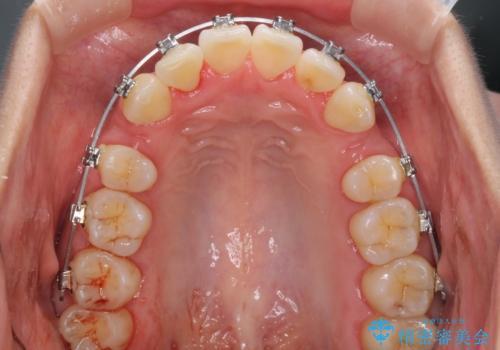 前歯のデコボコを治したい 費用を抑えた抜歯矯正の治療中