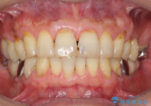 奥歯のインプラント ソケットリフト 60代男性の治療前