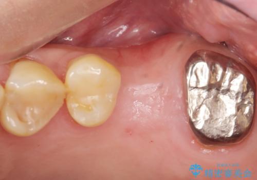 奥歯のインプラント ソケットリフト 60代男性の症例 治療前