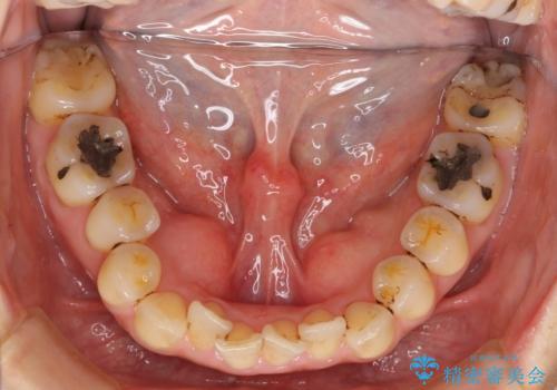 前歯のガタガタ 治療期間がかかっても良いので非抜歯でマウスピースでの治療前