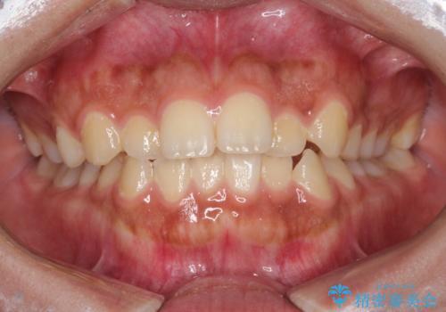 インビザライン 前歯のがたつきを目立たず矯正の症例 治療前